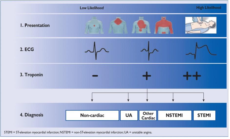 Bagan diagnosis ACS UAP, NSTEMI, dan STEMI