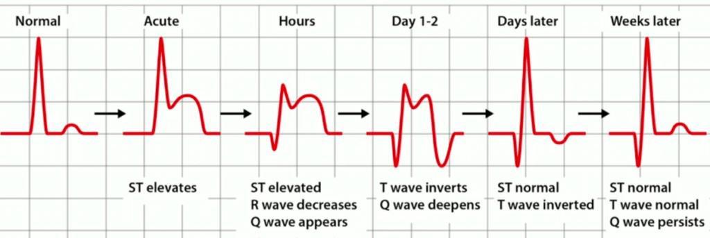Gambar evolusi pola EKG pada STEMI