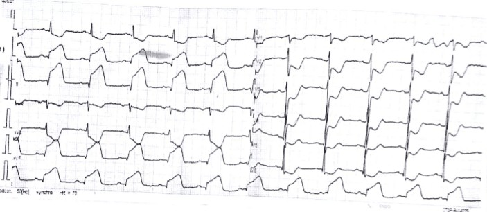Contoh gambaran EKG pasien dengan STEMI