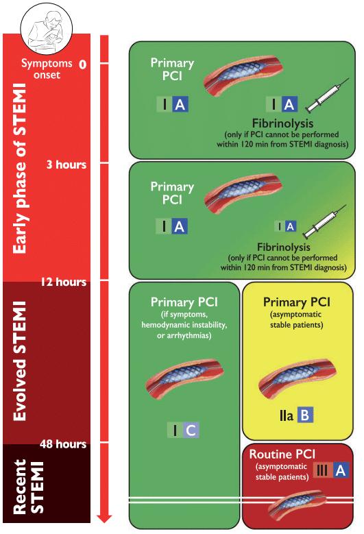 Indikasi primary PCI dengan memperhatikan onset kejadian STEMI
