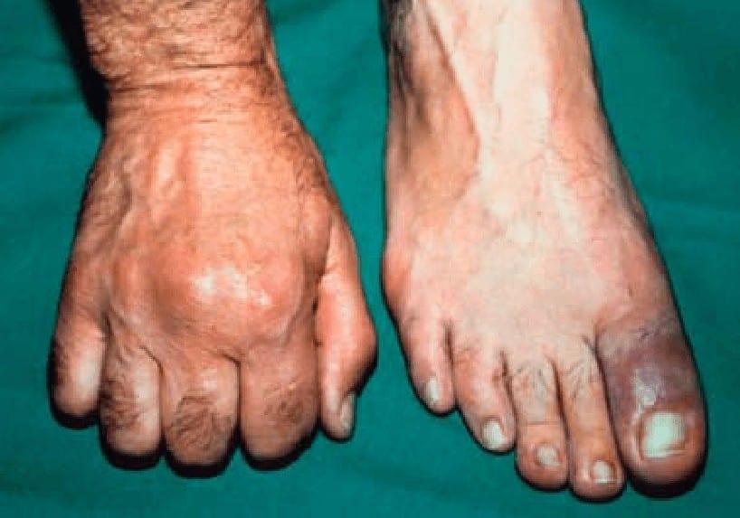 Gambaran podagra pada serangan gout