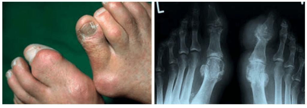 Tophus akibat kronik dari hiperurisemia