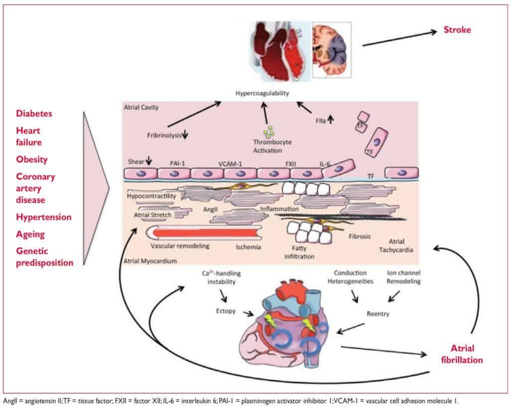 Patogenesis AF