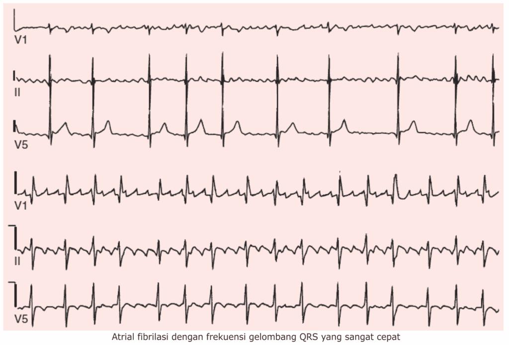 Atrial fibrilasi dengan frekuensi gelombang QRS yang sangat cepat