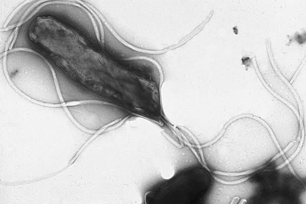Flagella dari H. pylori