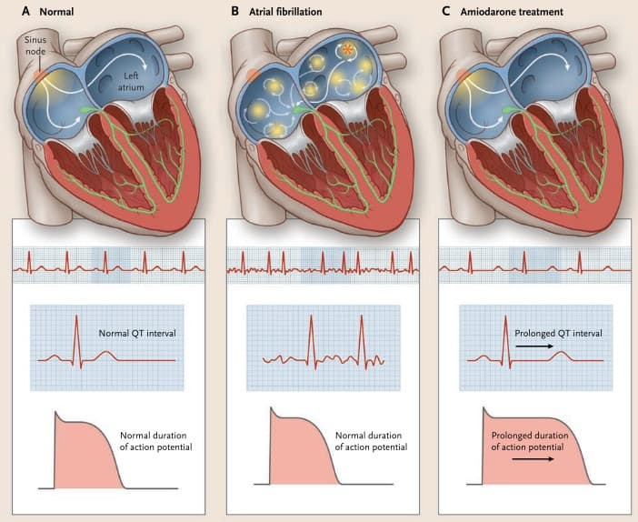 Pengaruh amiodarone pada atrial fibrilasi