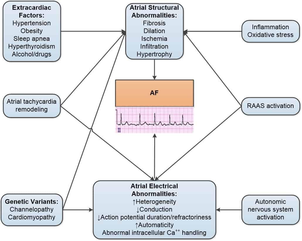 Patogenesis dan patofisiologi AF