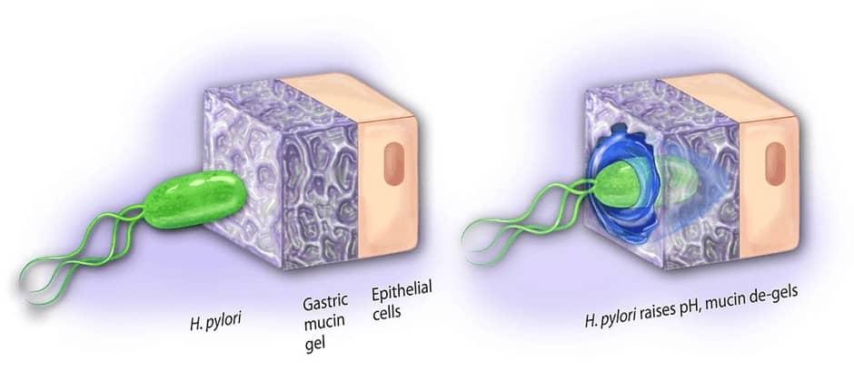 Mekanisme H. pylori menggunakan amonia untuk menembuas lapisa muscin gaster