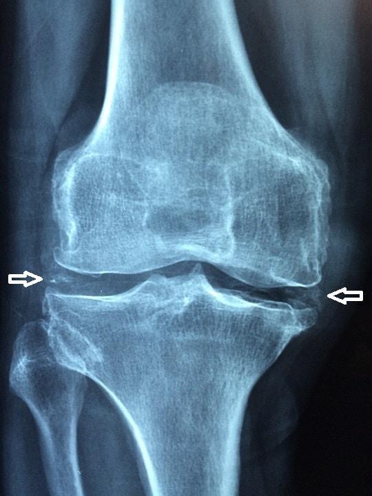 Gambaran radiologis penyakit deposit kristal non gout CPPD