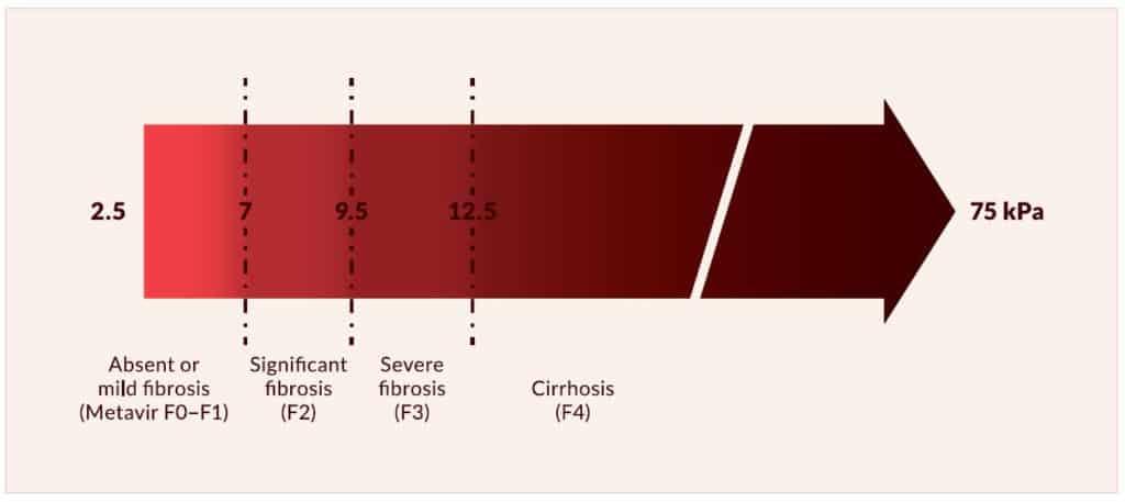 Derajat fibrosis hati berdasarkan elastografi