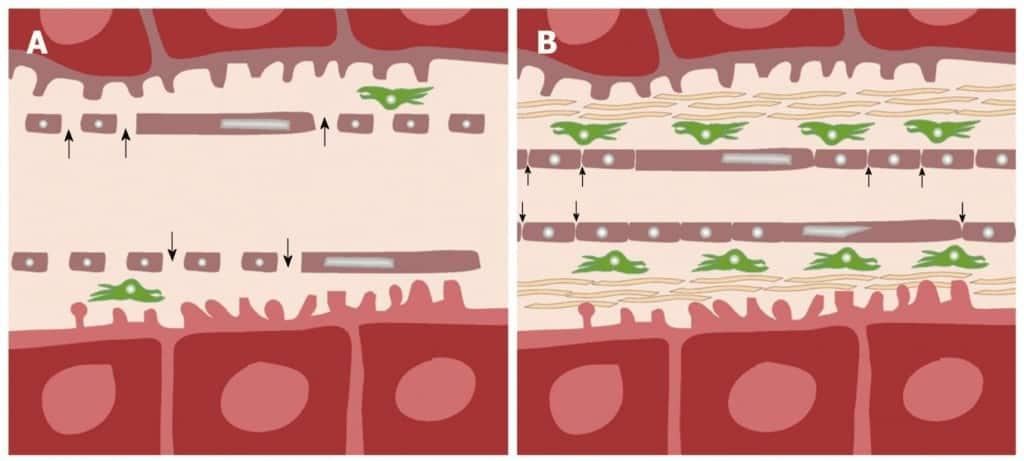 Proses kapilerisasi sinusoid pada sirosis hati