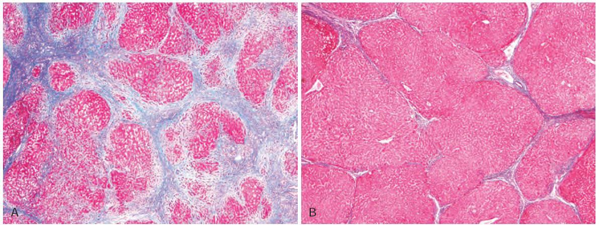 Gambaran histologi hati yang sirosis dan yang mengalami perbaikan