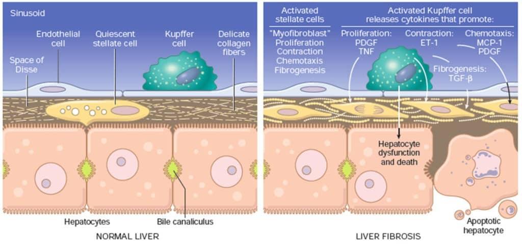 Perubahan sinusoid hati pada patogenesis sirosis hati