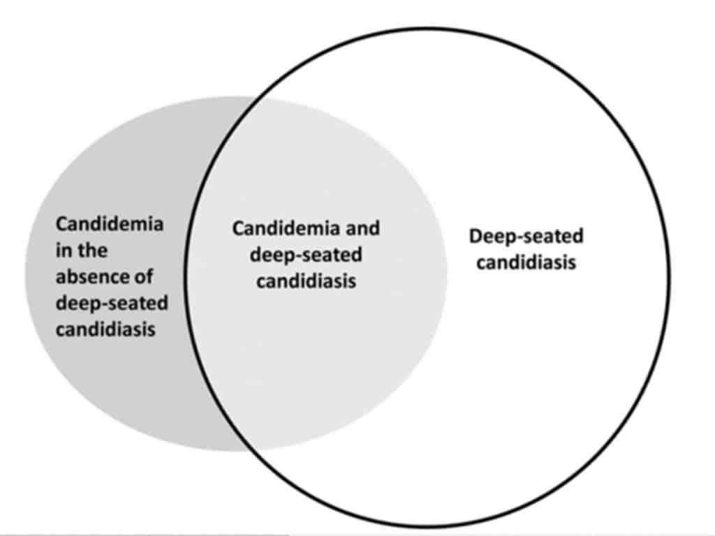 Jenis atau tipe infeksi Candidiasis invasif