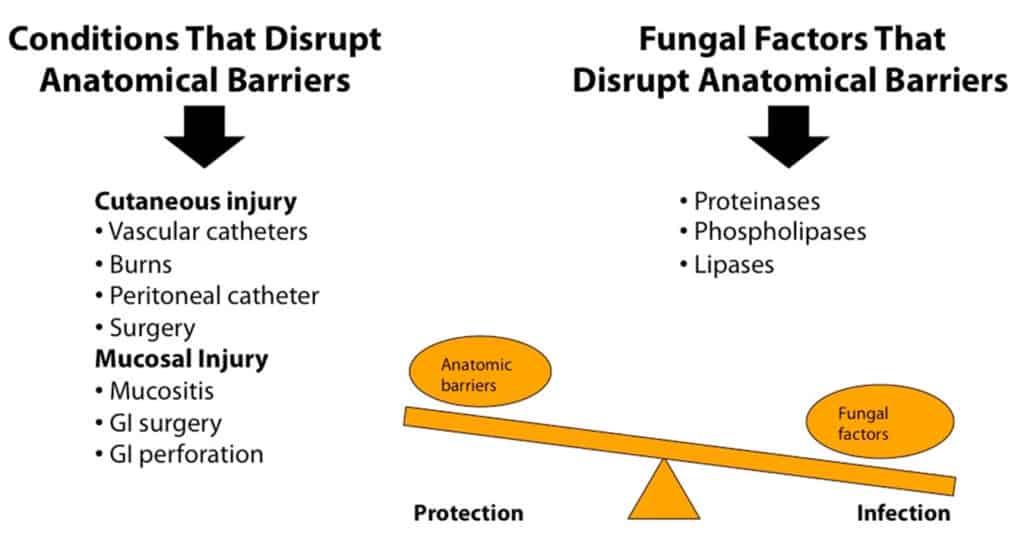 Faktor yang menyebabkan terjadinya infeksi jamur invasif khususnya Candida