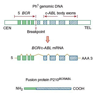 Fusi gen BCR dengan gen ABL menghasilkan protein Bcr-Abl