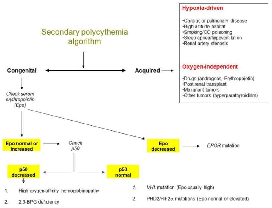 Alur diagnosis polycythemia vera