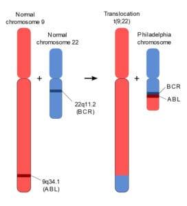 Gambar mekanisme translokasi kromosom yang menghasilkan kromosom Philadelphia