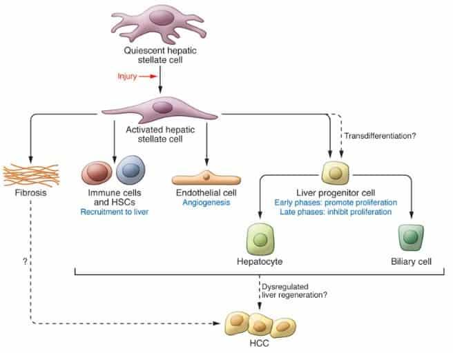 Sel Ito dalam patogenesis HCC