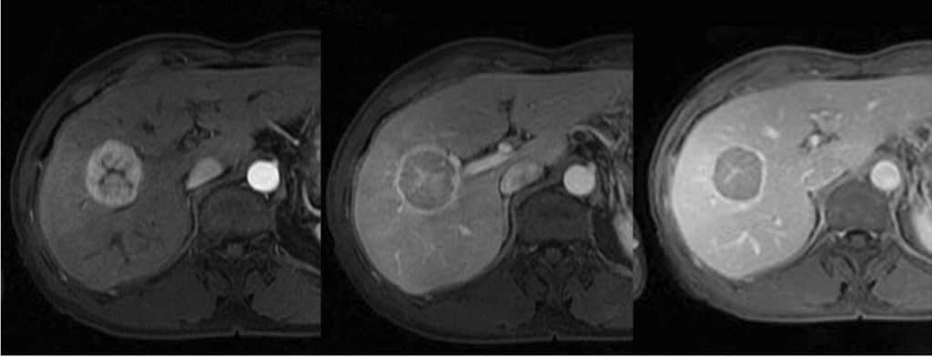 Pola khas HCC pada pemeriksaan MRI multifase