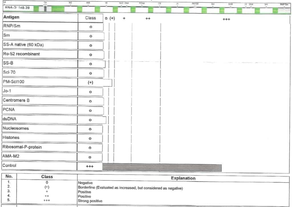Contoh pemeriksaan ANA profile dengan metode ELISA