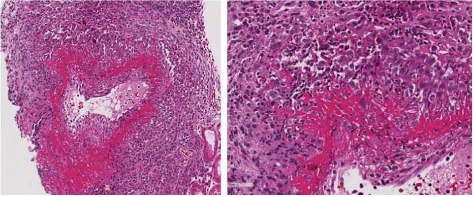 Gambaran histologi kasus AAV tipe  gralunomatosis dengan poliangitis (GPA)