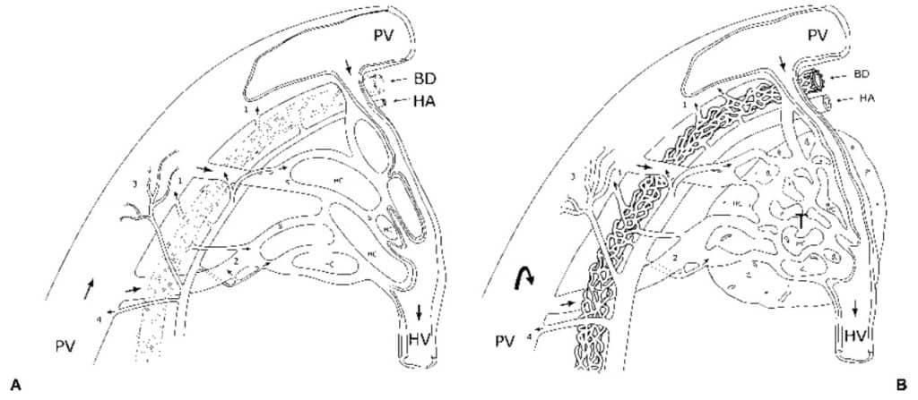 Skema perbendaan vaskularisasi jaringan hati normal vs jaringan HCC