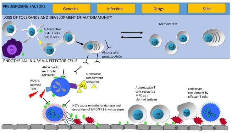 Gambaran patogenesis vaskulitis pada ANCA