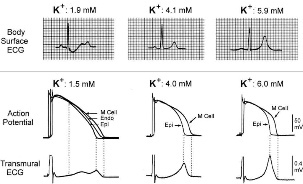 Perbandingan EKG kondisi hipokalemia dengan normokalemia dan hiperkalemia