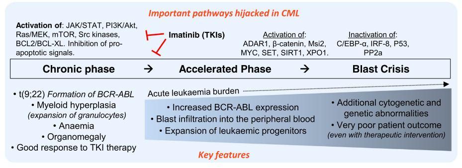 Mutasi pada progresi CML (CML fase akselerasi dan CML krisis blas)