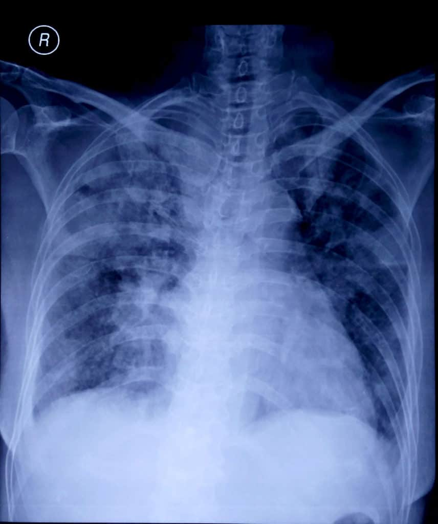 Gambaran foto toraks pada kasus community acquired pneumonia