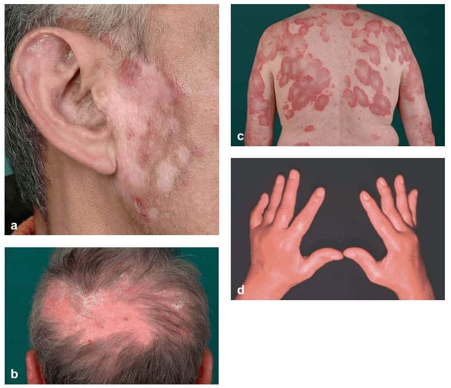 Gambaran dermatologis penyakit lupus