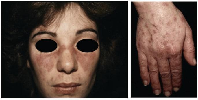Malar rash sebagai kriteria diagnostik lupus