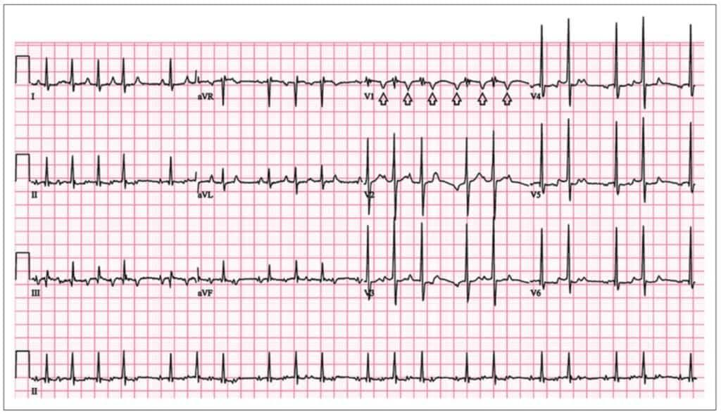 Gambaran EKG kasus SVT