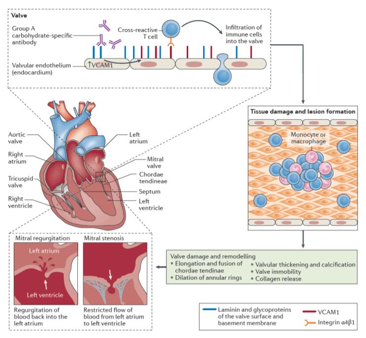 Patogenesis terjadinya karditis pada demam reumatik