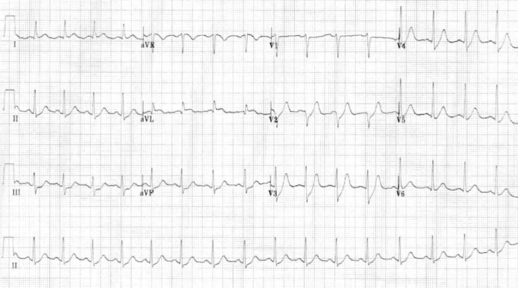 EKG dengan ST depresi terlokalisasi