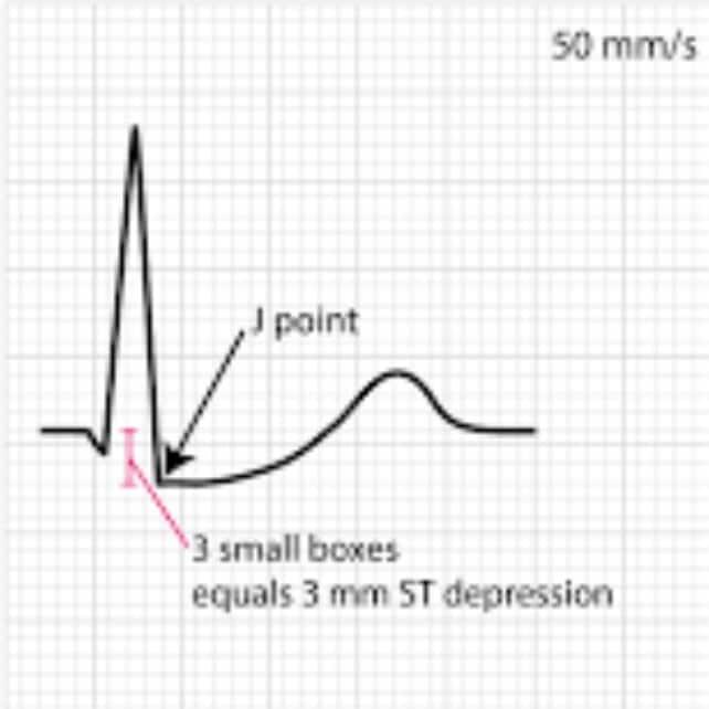 ST depresi dan letaknya dari J point