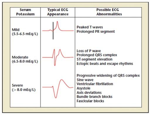 Gambaran EKG berdasarkan derajat beratnya hiperkalemia