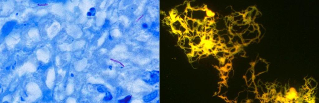 Diagnosis mikroskopis tuberkulosis