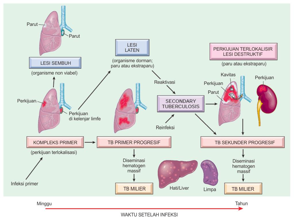 Perjalanan alamiah penyakit dan spektrum tuberkulosis