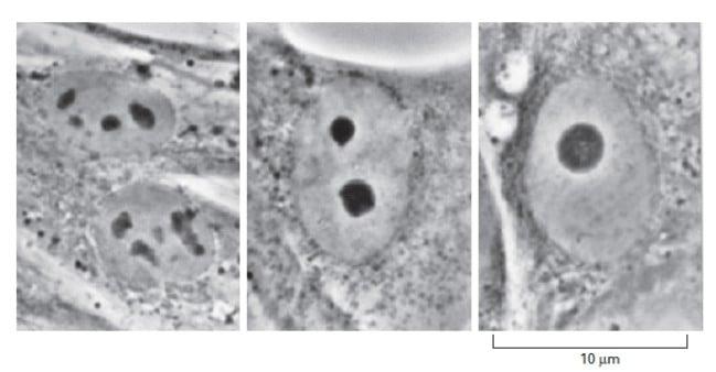 Gambar nukleolus fibroblas dalam beberapa fase