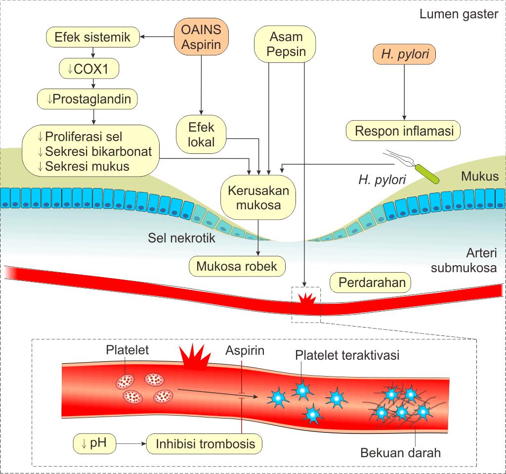 Mekanisme aspirin, OAINS, dan H. pylori menyebabkan perdarahan nonvariseal saluran cerna bagian atas.