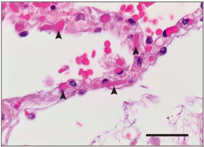 Mikrotrombi (anak panah) pada paru pasien Covid-19