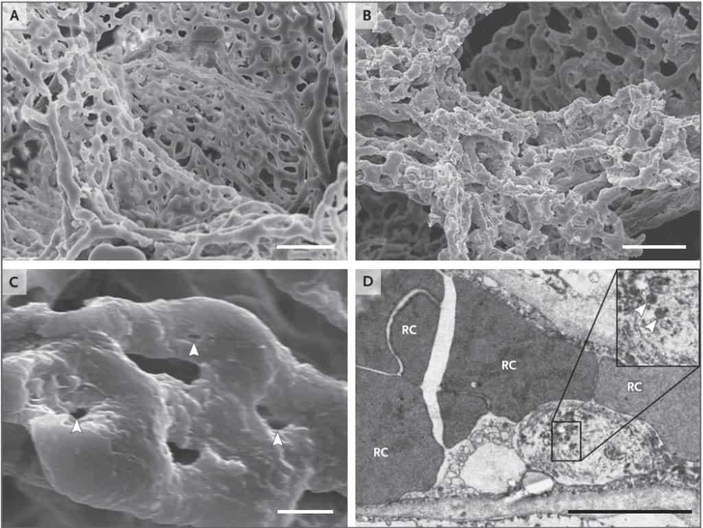 Perubahan kapiler paru penderita Covid-19