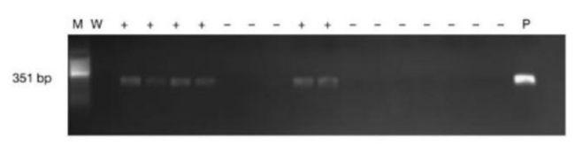 Contoh elektroforesa sampel PCR