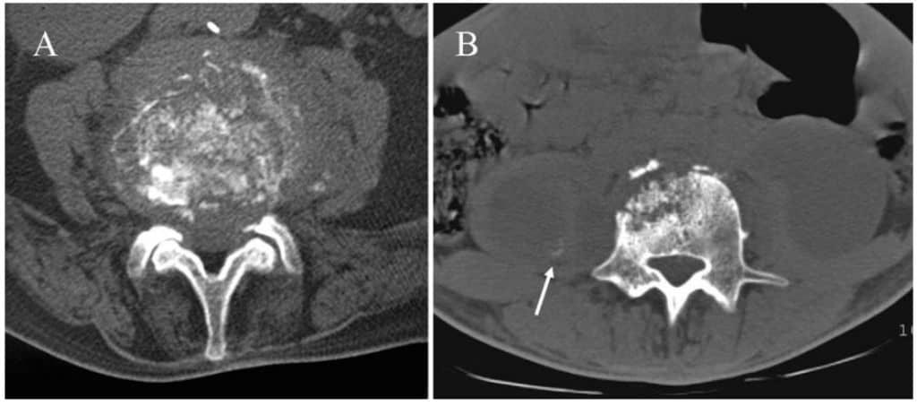 Gambaran CT-scan spondilitis TB