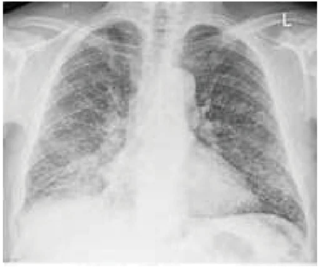Gambaran TB paru milier