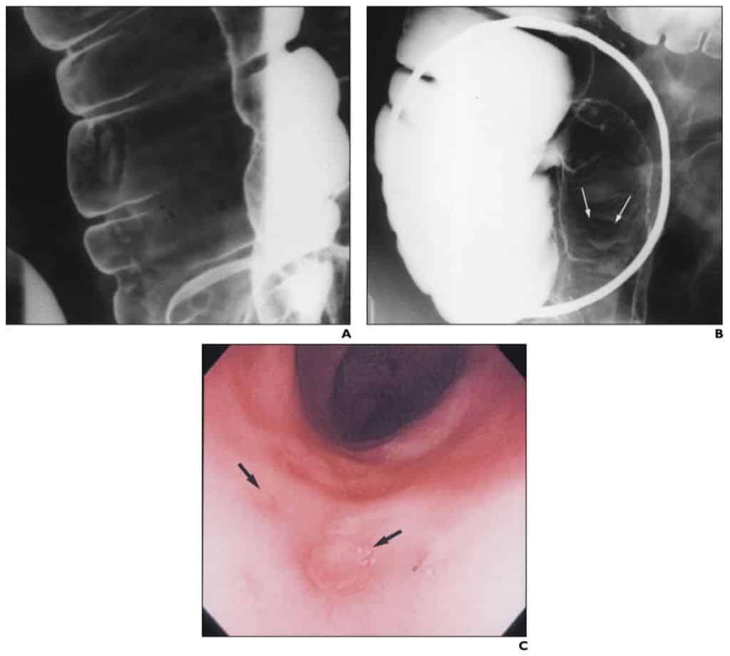 Gambaran kolitis TB tahap awal