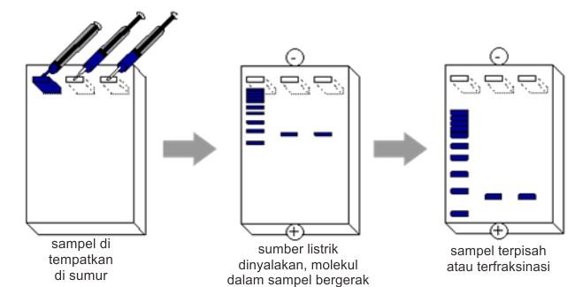 Bagan cara pemeriksaan elektroforesa