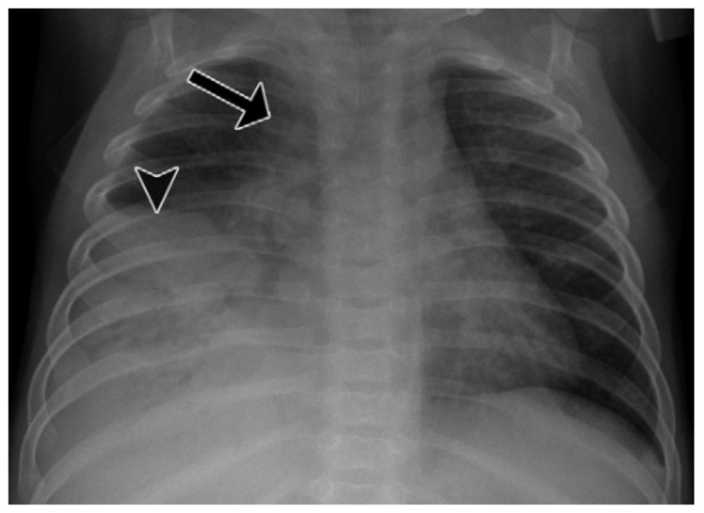 Gambaran TB paru primer pada bayi usia 6 bulan